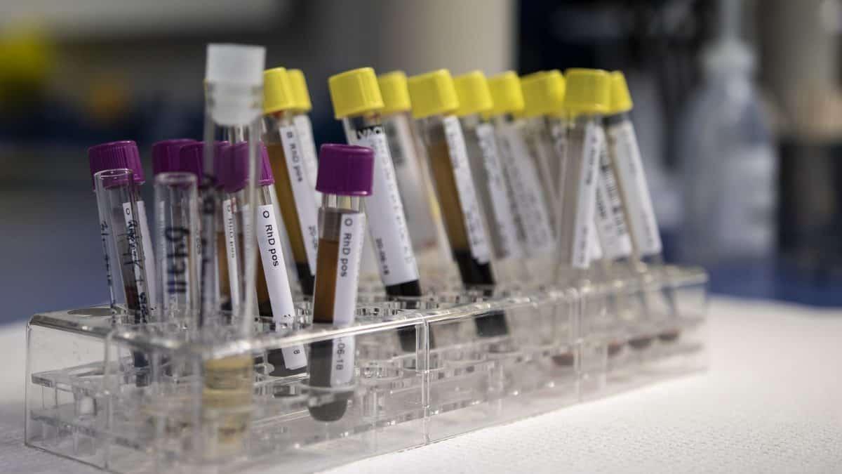 Morfologia – co można wyczytać z krwi?