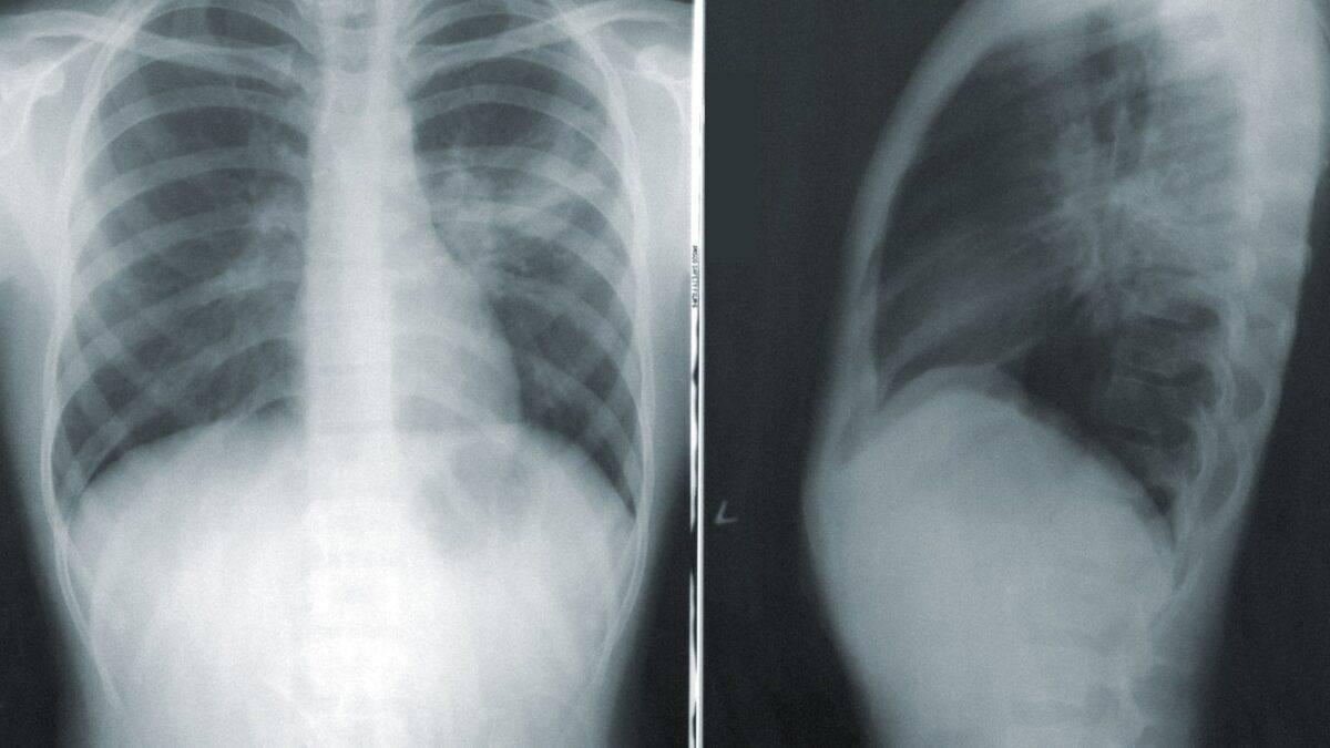 Jak groźne jest zapalenie płuc?